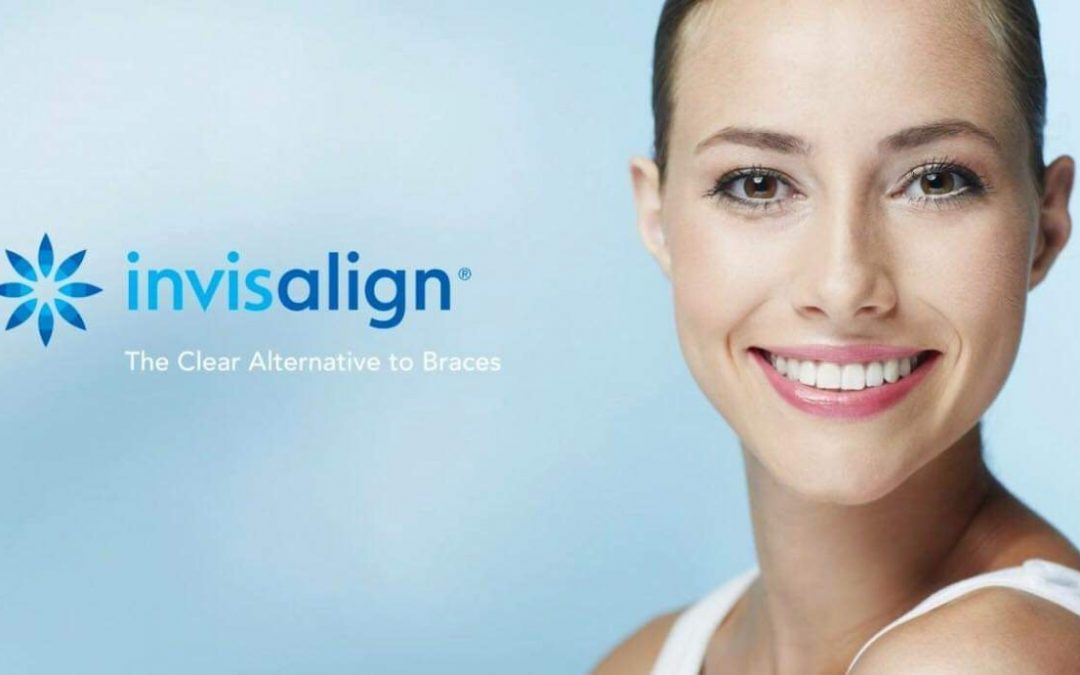Thinking about Invisalign?