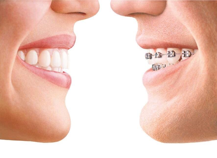 The difference between a Dentist and an Orthodontist