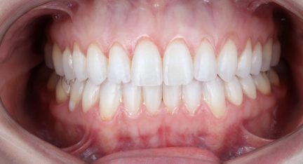 How to stop your gums from receding
