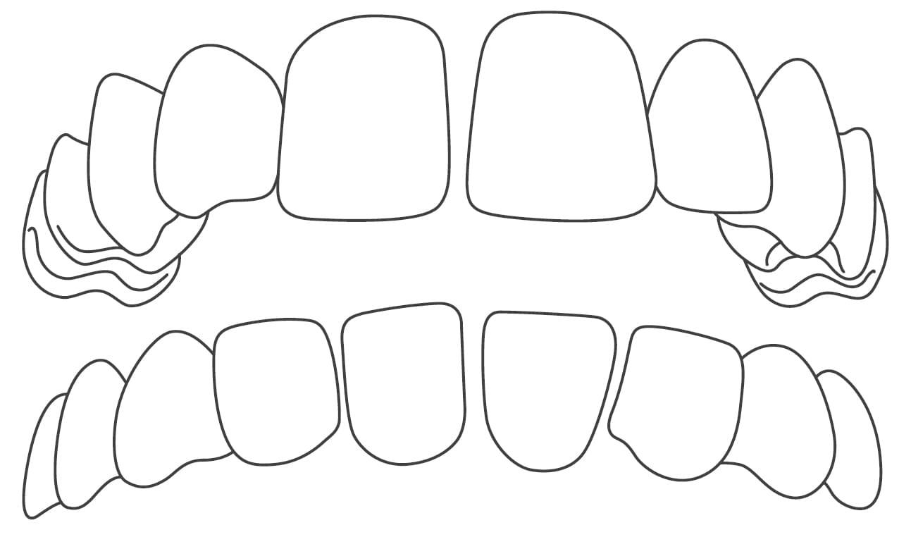 gaps in teeth